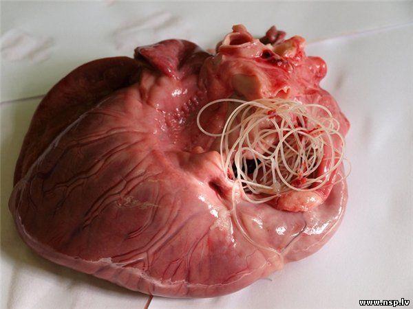 черви в организме человека симптомы и лечение