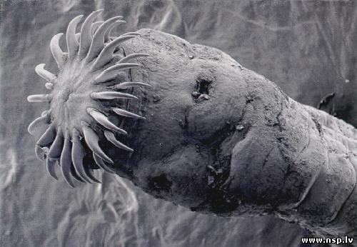 паразиты в организме человека фото симптомы