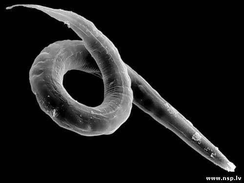 видео глисты в организме человека скачать
